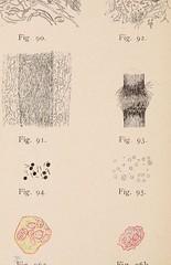 This image is taken from Lehmanns Medicin. Hand-Atlanten. Band V : Atlas der Hautkrankheiten, mit 90 farbigen und 17 schwarzen Abbildungen