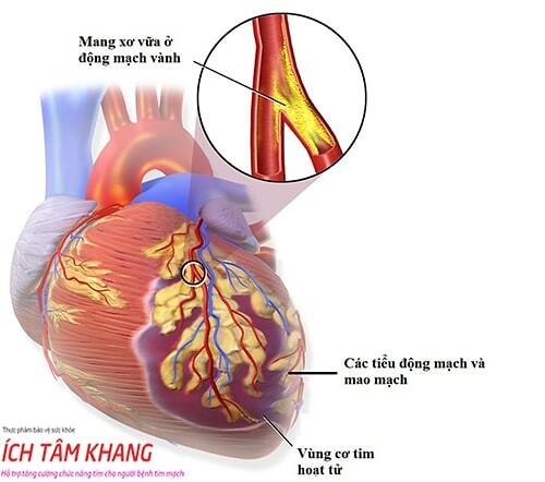 Thiếu máu cơ tim do bệnh vi mạch vành là do co thắt các tiểu động mạch và mao mạch