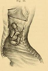 This image is taken from Page 153 of Vorlesungen über die Krankheiten der Luftröhre