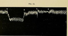 This image is taken from Page 84 of The physiology and pathology of the cerebral circulation; an experimental research