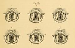 This image is taken from Page 123 of Vorlesungen über die Krankheiten der Luftröhre