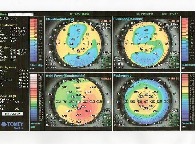 Topografia e Pachimetria corneale Dr. Luca Avoni