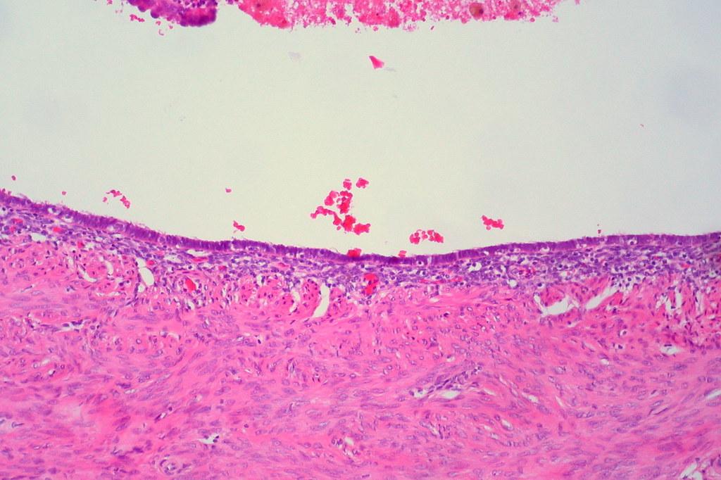 Endometriosis of the Fallopian Tube (Luminal Pattern)