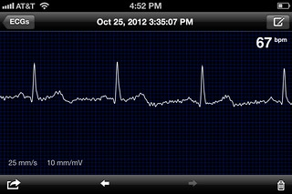 AliveCor iOS screenshot | by juhansonin