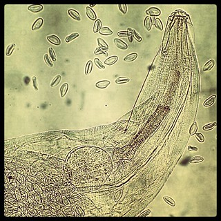 Enterobius vermicularis macho y hembra