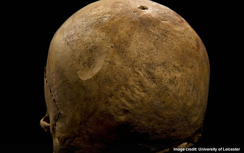 Injury 4 - Flat circle on left rear of skull