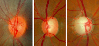 Normal optic disc and glaucomatous optic nerve heads of two patients with different severities of glaucoma | by Community Eye Health