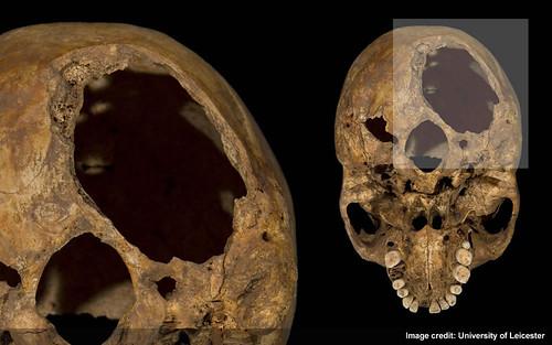 Injury 1 - Large hole underneath back of skull