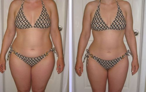 hcg diet sample before-and-after | by drgreghaitz
