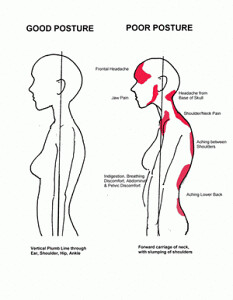 Poor posture affecting women | One of the keys in healing is… | Flickr