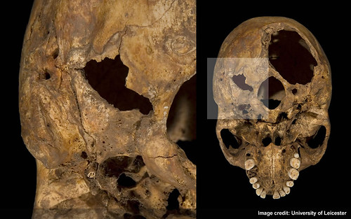 Injury 2 - Wound on right base of skull