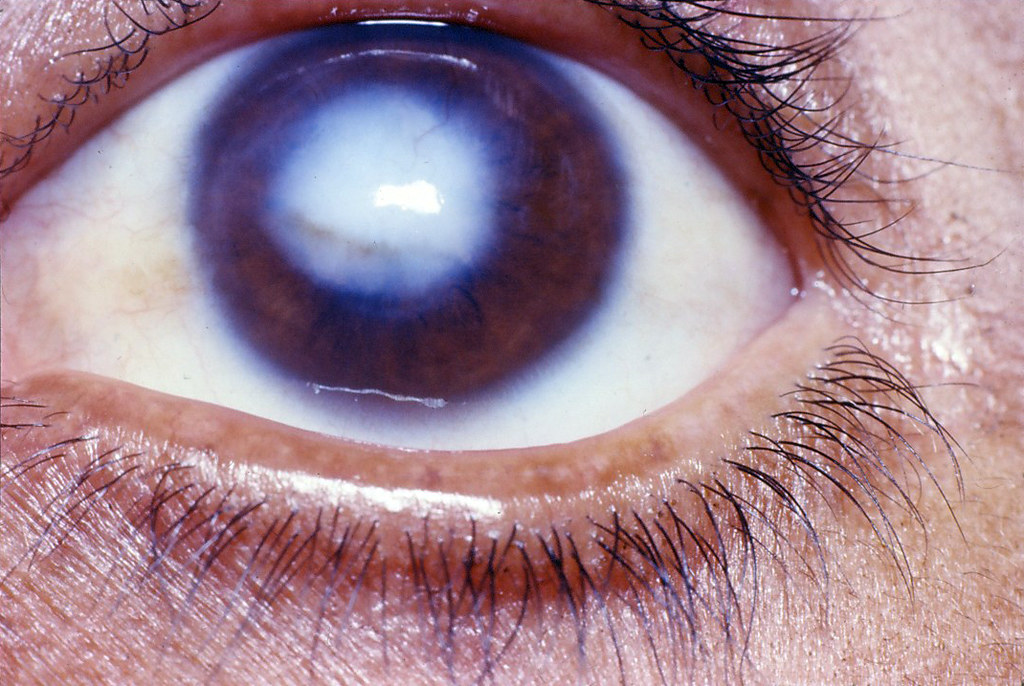 central corneal opacity  in front of the pupil
