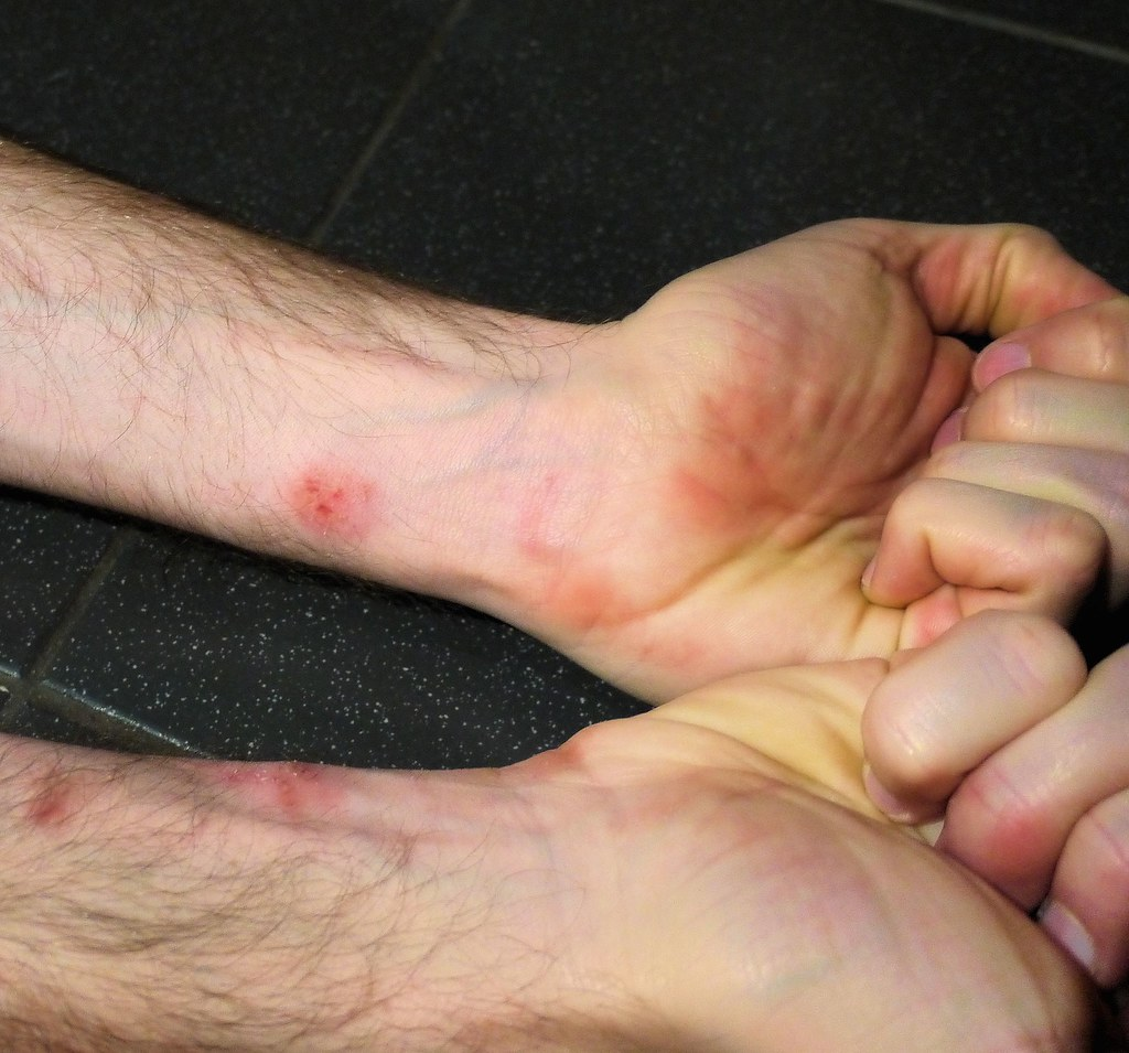 Parkour Injury: Wrist Scrape | parkour injury: wrist scraped… | Flickr
