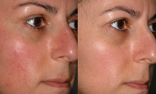Rosacea Treatment It Is Possible To Have A Home Rosacea Tr Flickr