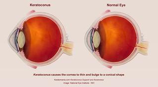 Keratoconus Eye Diagram | by Keratomania