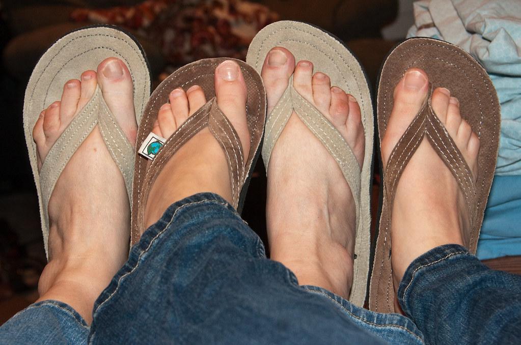 b0669f7a3 ... Ugly feet
