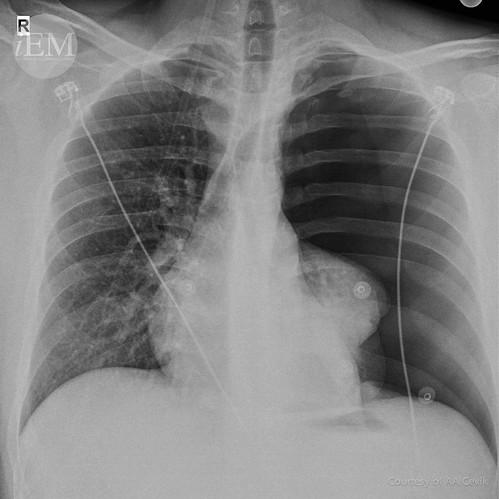 40.1 - Pneumothorax 1 | by iem-student.org