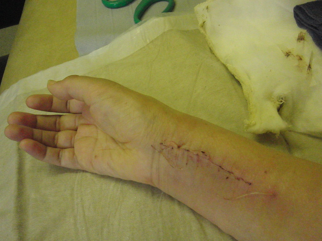 Wrist - stitches removed   10 days after surgery   Flickr