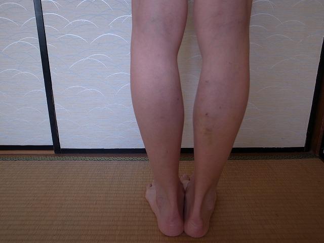 <p>d)10/16右足のレーザー手術を10/2に済ませました。左はかなりきれいになったことが分かると思います。右足のコブもなくなりました。</p>