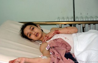 A girl who was injured in a car bomb that exploded in Daf al-Shok district lies in a hospital in Damascus on October 26, 2012. (Sana/Reuters) | by FreedomHouse