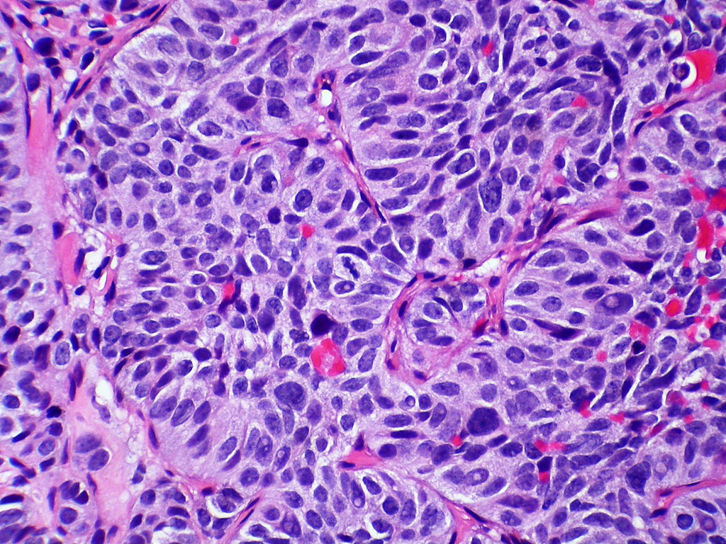 Atypical Carcinoid Tumor Of Lung Metastatic To The Adrenal