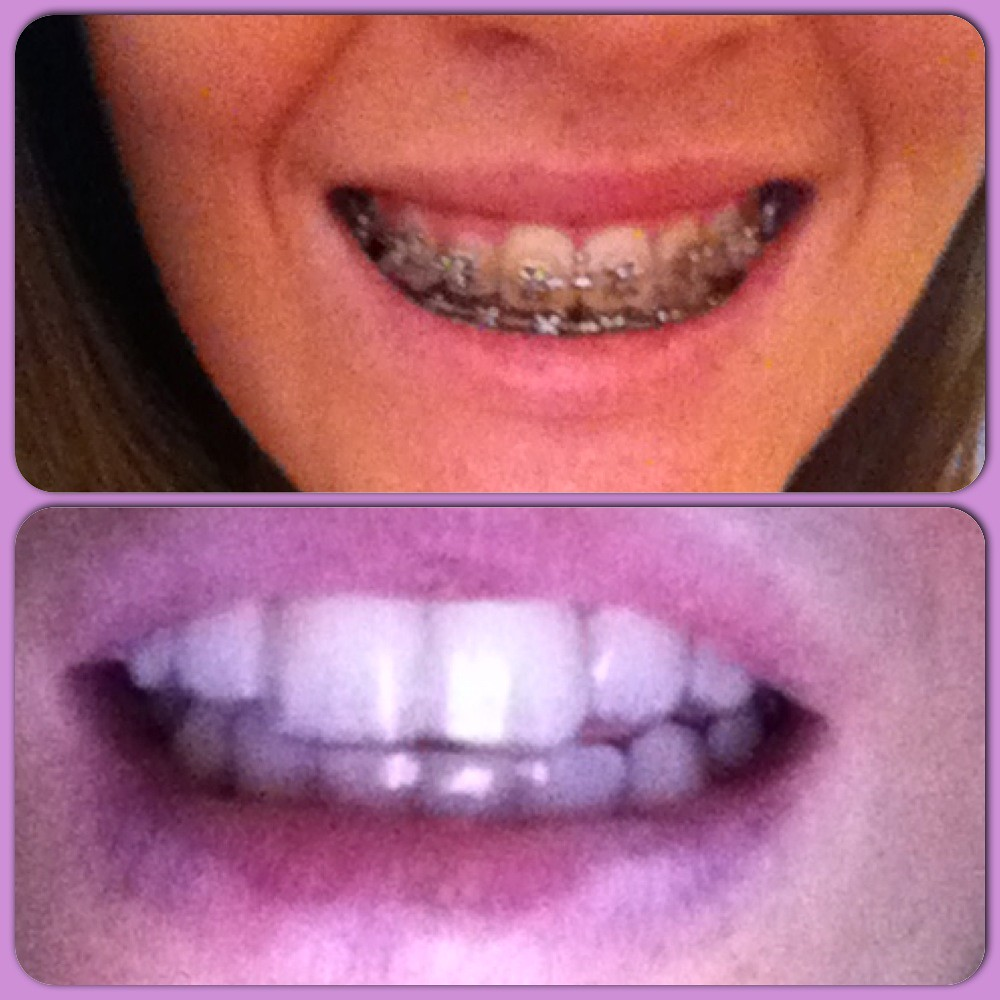 Braces and Retainers before an after straight teeth clear