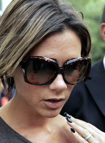 Posh Spice Aka Victoria Beckham Types Of Acne Your Docto Flickr