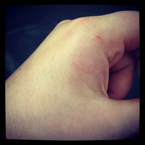 Thanks for the puncture wound cat  Sigh  | Thanks for the pu… | Flickr