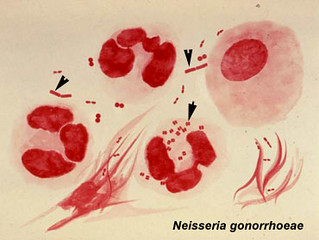 ff neisseria gonorrhoeae