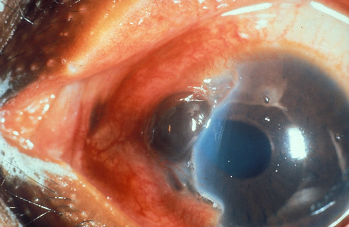 Iris prolapse.   by Community Eye Health