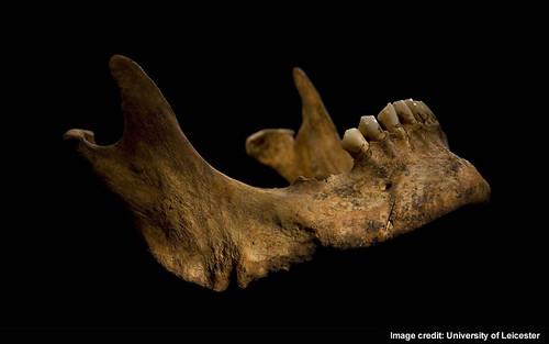 Injury 7 - Cut on lower jaw