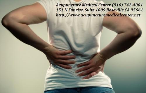chiropractic chiropractor acupunctureclinicrosevilleca chiropractorrosevilleca rosevillecachiropractic