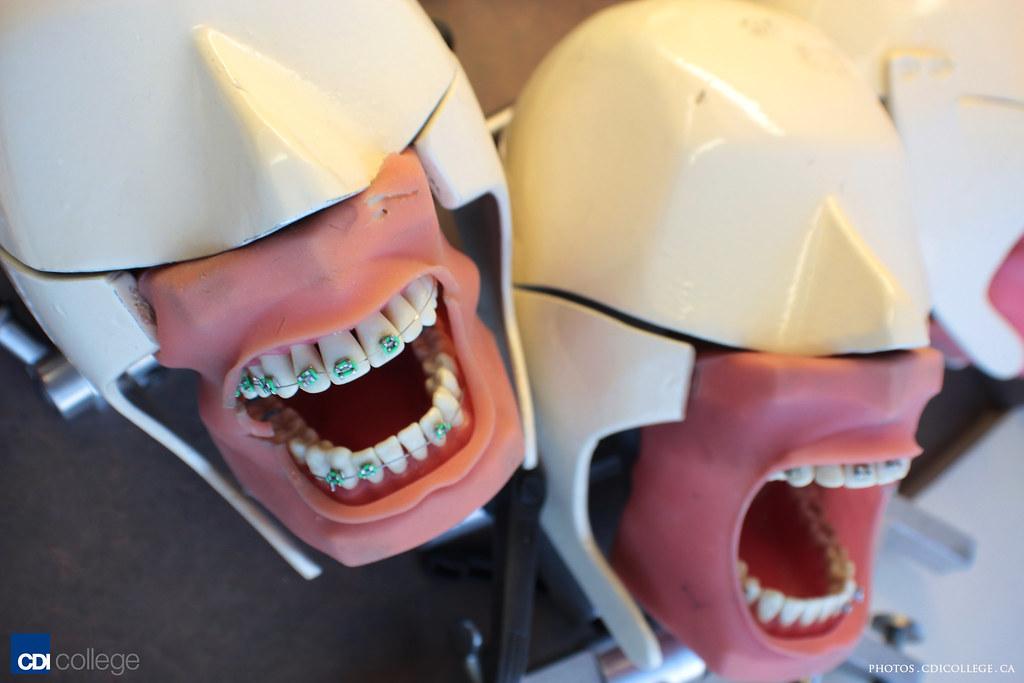 CDI College Burnaby Campus Dental Assisting Program teeth