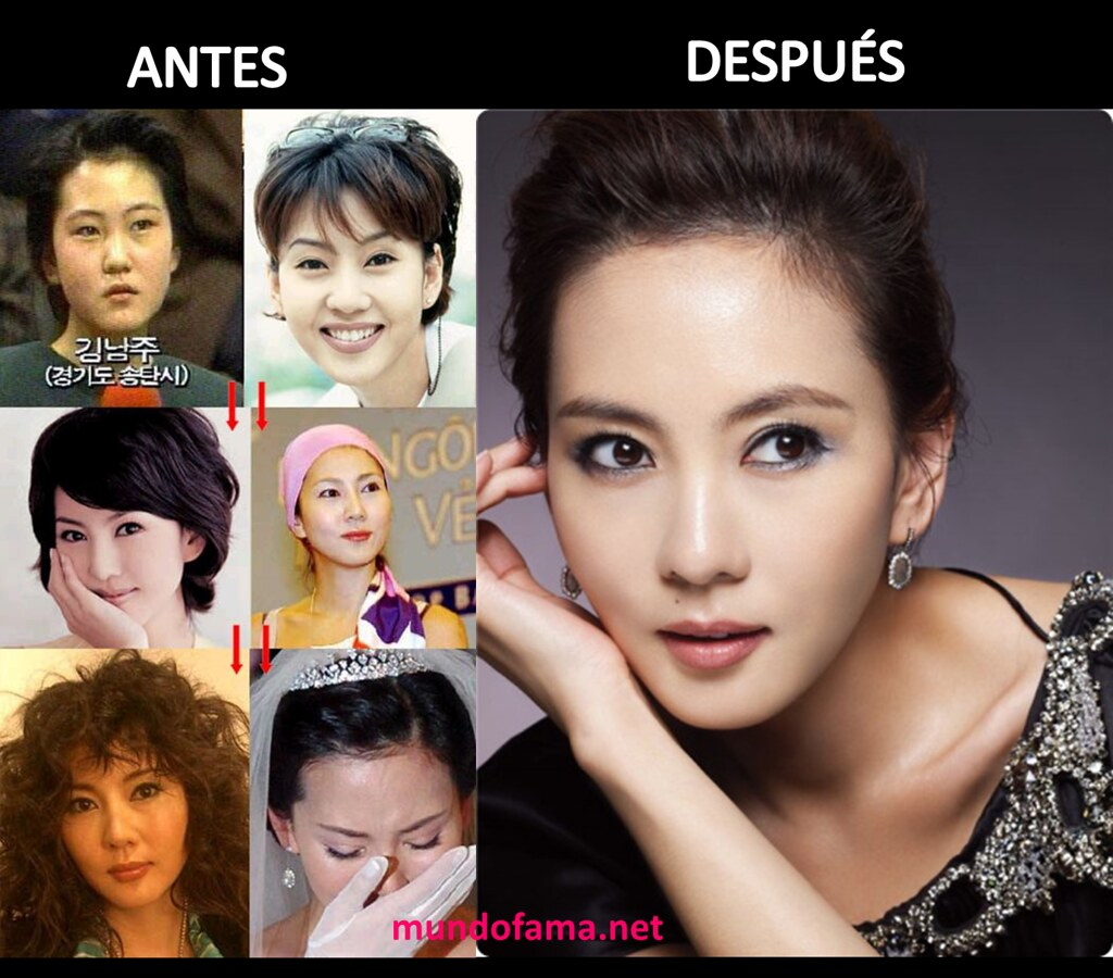 Actrices Coreanas korean actress before and after plastic surgery actrices c
