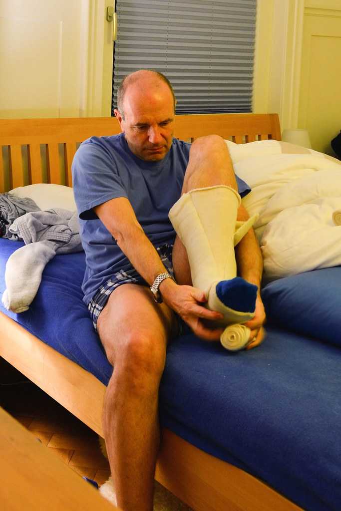 Beinbruch gips