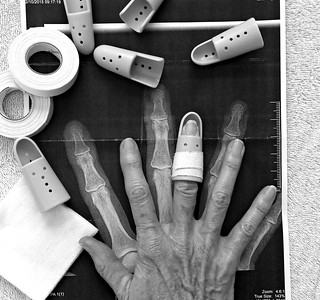 Mallet finger | by Kerri Lee Smith