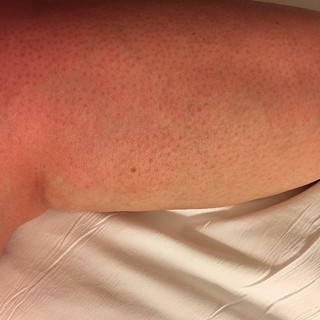 It's like an ombre from my leg to the sheets! #oops #sunburn #Jamaica #sandals #vacation