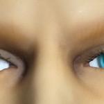 Eyes iris 5mm vs 7mm comparison