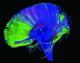Neural pathways in the brain | by NICHD NIH