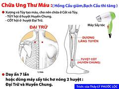 Chua Ung Thu Mau