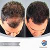 Hair Restoration - Transplantation