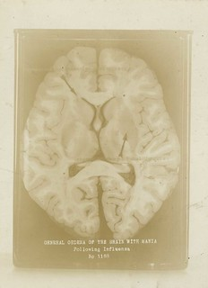 General edema of the brain with mania following influenza (Reeve 030050), National Museum of Health and Medicine | by medicalmuseum