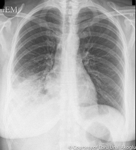 40 yo Female with respiratory distress | by iem-student.org