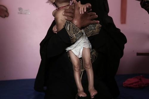 498 Starvation in Yemen | by Felton Davis