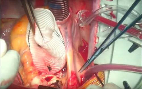 aorticaneurysm aorticsurgeryawareness beatingheart cabg cardiovascularsurgery cardiologyspecialist cardiothoracicsurgery cardiovascularsurgeon drevjohn drjohnev heartaorticdiseases hybridaorticprocedures johnev kakkanad minimallyinvasive seniorconsultant sunrisehospital kochi thebestcardiologistkerala topcardiacsurgeon valvereplacement