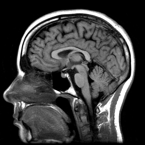 20060508 - Carolyn's MRI - Image 8 of 15 - Detailed Carolyn brain