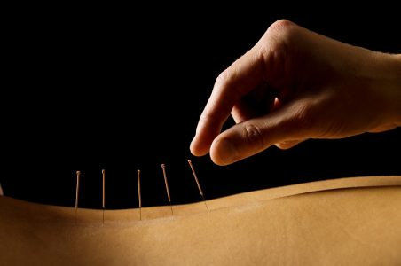 Acupuncture and Phytotherapy - Queens of Traditional Medic ...